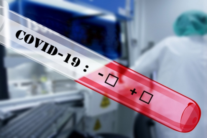 Διενέργεια προληπτικών τεστ ανίχνευσης κορωνοϊού στον Δήμο Β. Κυνουρίας